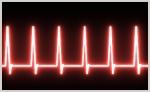 Heartbeat Electrcardiogram Image