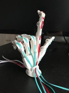 Mallet Finger (Extensor Tendon Rupture)